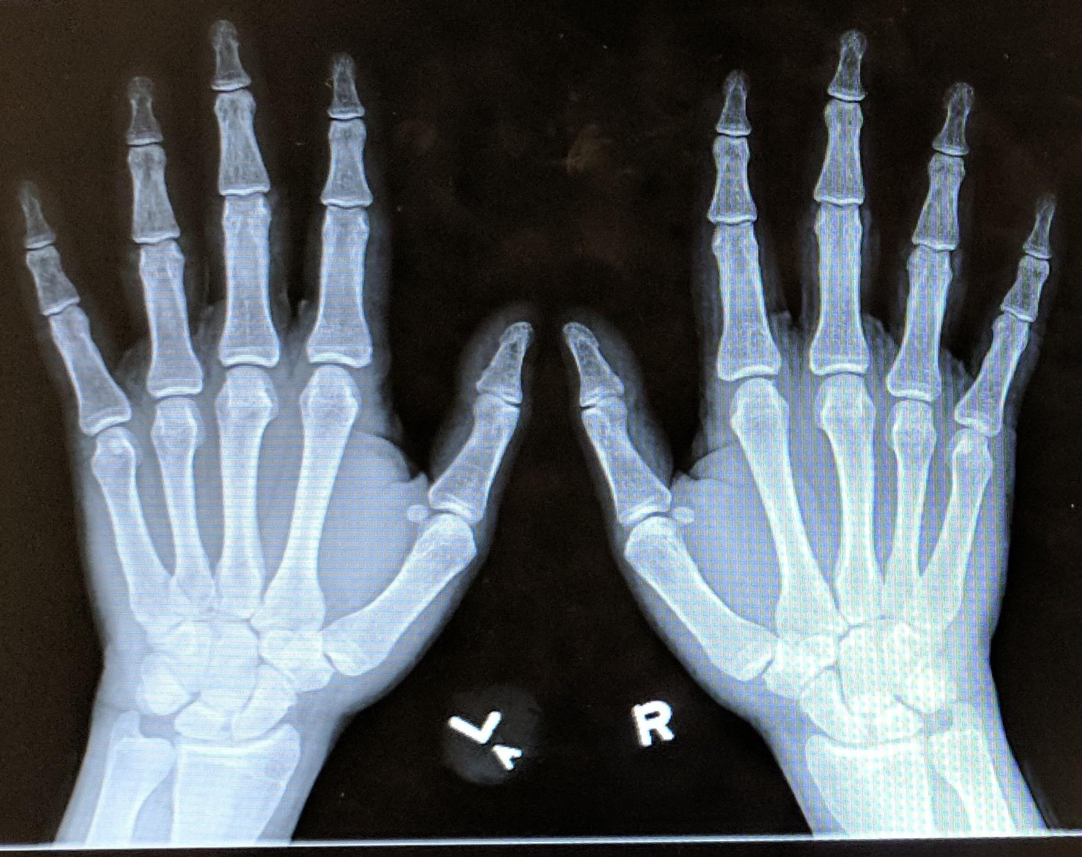 Future x-ray specs